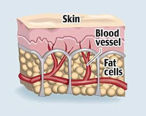 Skin with cellulite